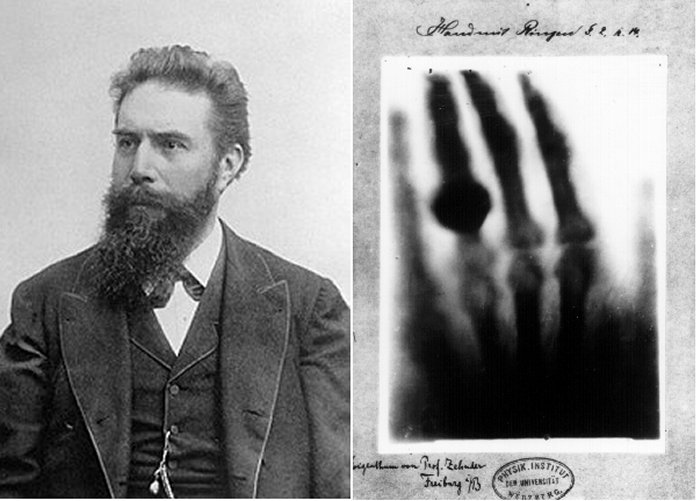 Röntgen and First X-ray (Ancient Pages)